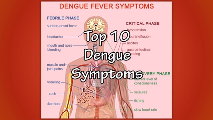 top 10 dengue symptoms music2