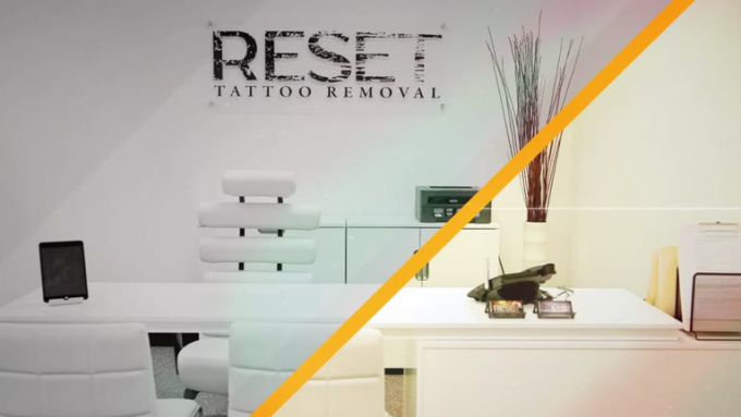 2nd Final Reset Tattoo Removal
